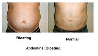 Belly Bloating