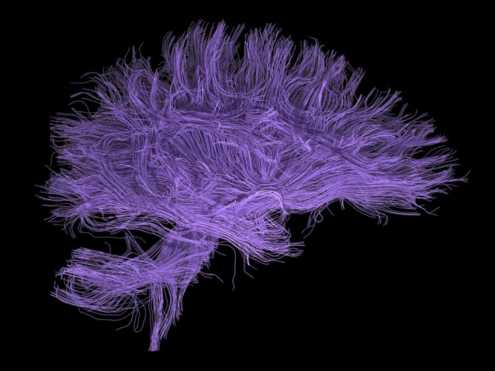 Cannabis, the Brain, and the Central Nervous System