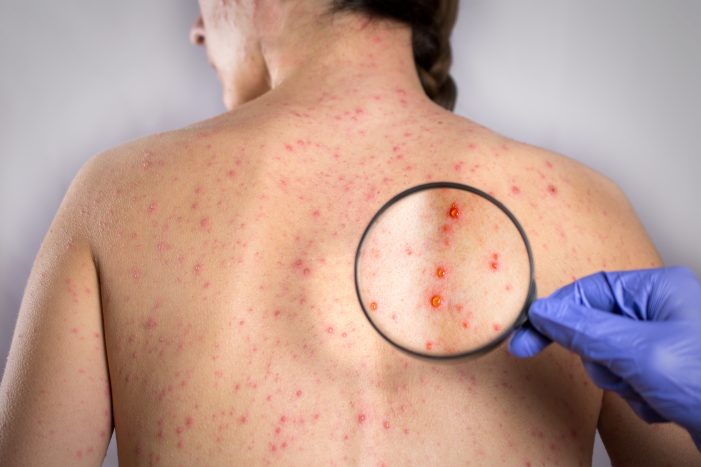 Measles Striking New York With Worst Outbreak in a Decade